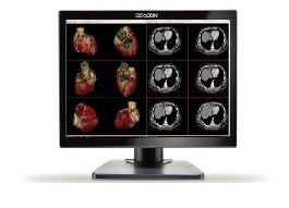 monitor medyczny